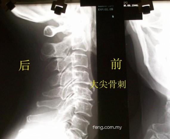 图1-大骨刺